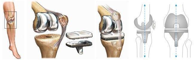 Операция по протезированию коленного сустава, как инновационный метод лечения