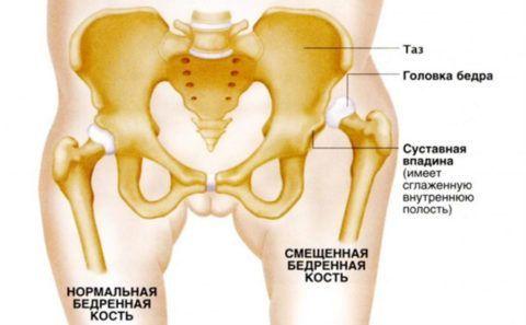 Дисплазия тазобедренных сочленений у малышей – это недоразвитие одного или обоих суставов таза.
