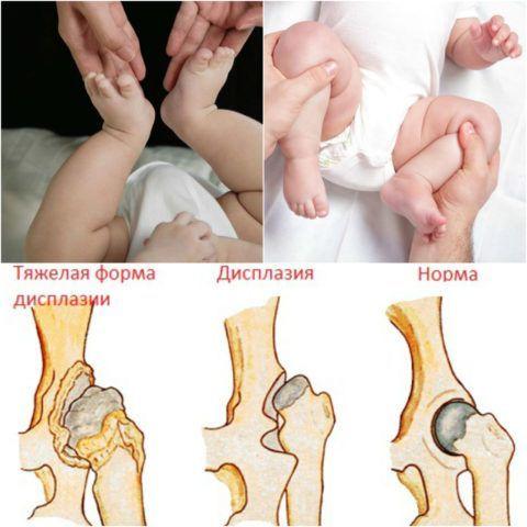 Дисплазия тазобедренных суставов характеризуется неправильным развитием хряща, связок и костей