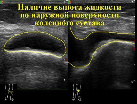 Для подтверждения выпота в колене проводят УЗИ сустава.