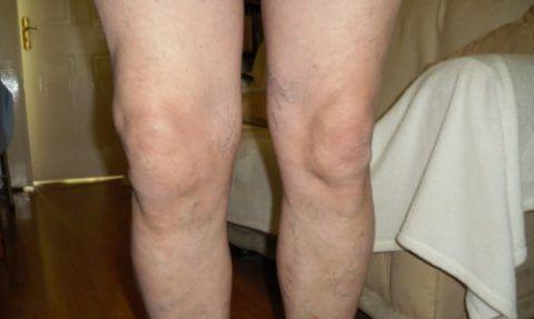 Есть ряд признаков (как на фото) характерных практически для любого вида артрита: боль, отек, ограничение подвижности в суставе.