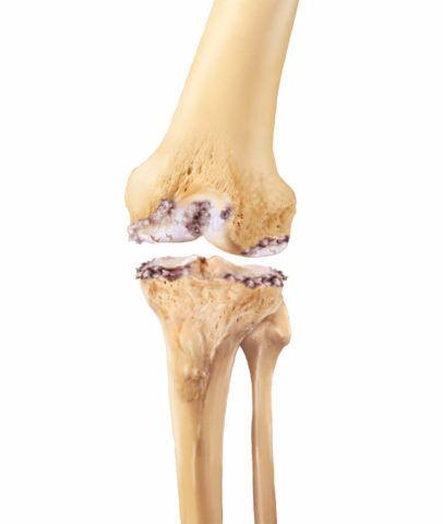 Гонартроз коленного сустава может привести к полному разрушению хряща