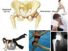 Коксартроз тазобедренного сустава: лечение, которое поможет!