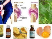 Лечение народными средствами артрита коленного сустава – лучшие рецепты