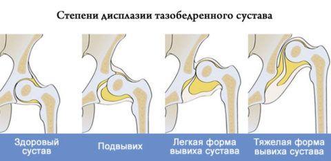 На фото показаны степени дисплазии тазовых сочленений у детей.