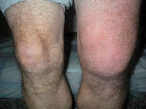 На фото представлен выраженный отек левого коленного сустава.