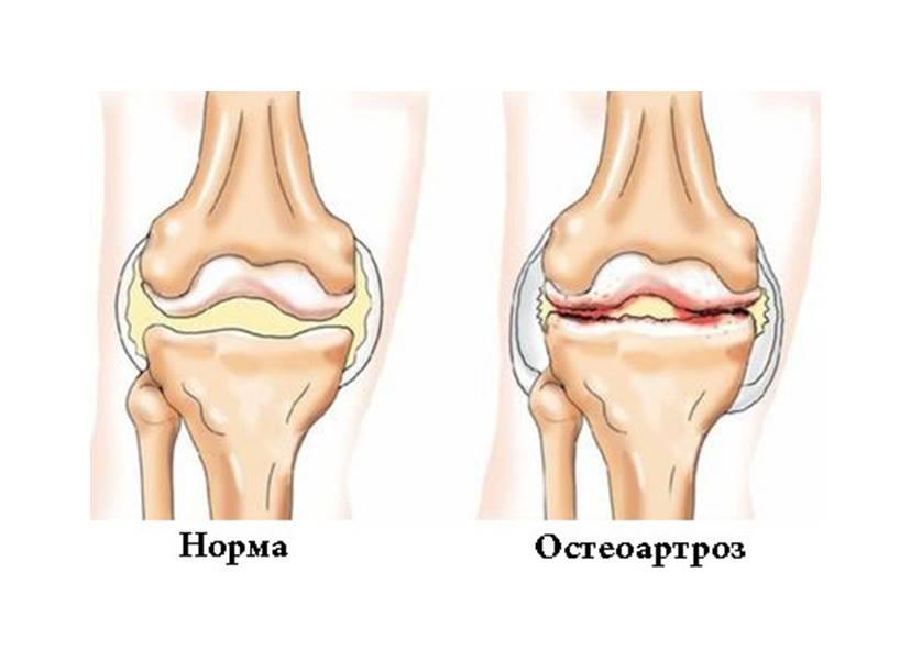 Дегенеративно-дистрофические заболевания суставов: подробно о распространенных патологиях