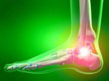 Как развивается остеоартроз голеностопного сустава — механизм патологии, проявления и методы лечения