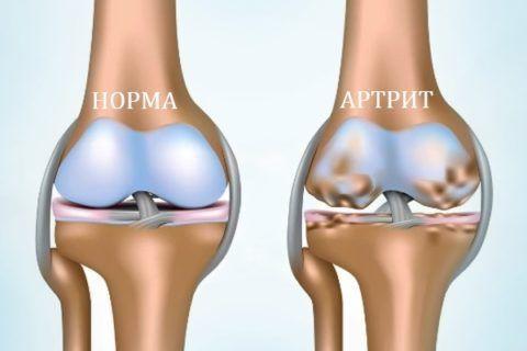 Острый артрит колена в большинстве случаев возникает вследствие уже имеющегося заболевания тканей сустава.