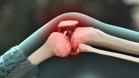 Остеоартроз коленного сустава замена сустава