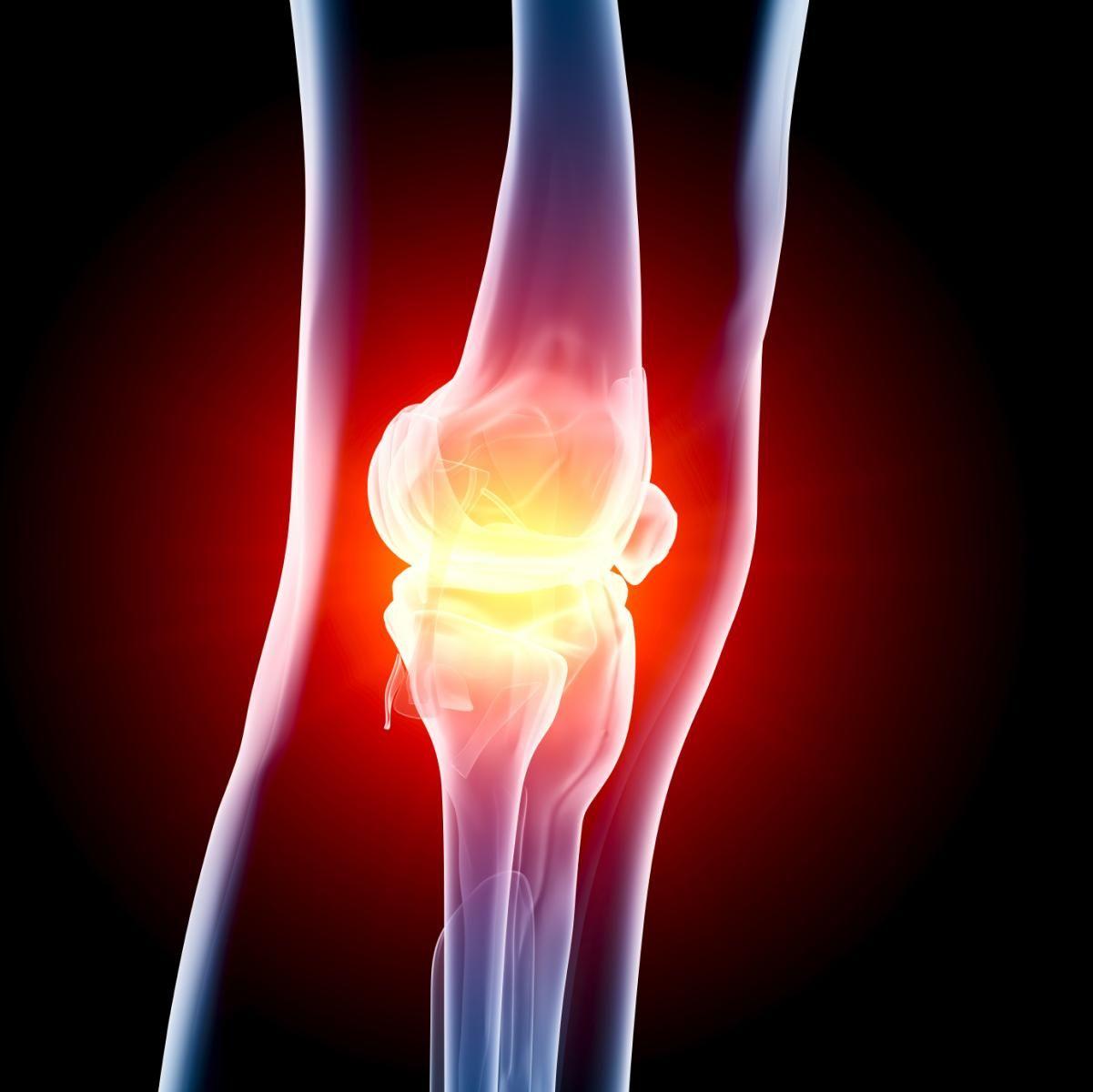 Как развивается артрит коленного сустава: все, что вы не знали об этом заболевании