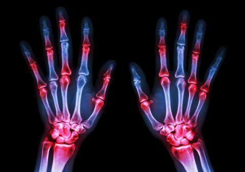 Как лечить артрит лучезапястного сустава?
