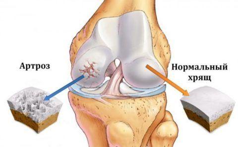 При гонартрозе страдает прежде всего хрящевая ткань