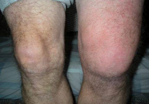 При остром воспалении колена пациент часто чувствуют резкую боль в суставе и наблюдает его сильную припухлость.