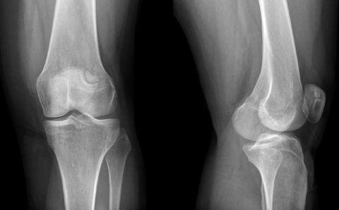 При травмировании колена следует обязательно сделать рентген.