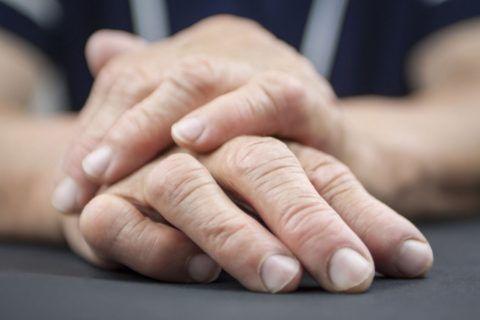 Причины ревматоидного артрита до сих пор не изучены
