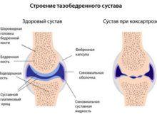 Коксартроз тазобедренного сустава: признаки и причины заболевания