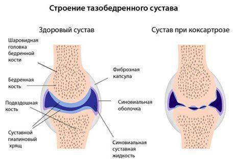 Различия анатомии сустава при коксартрозе