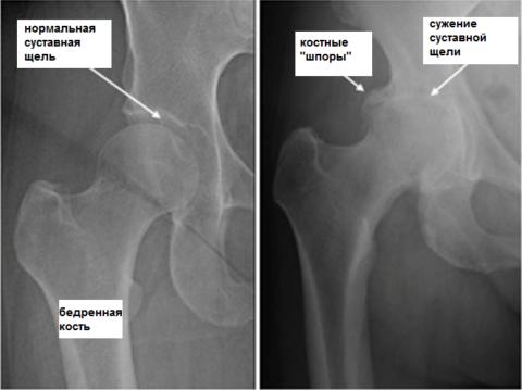 Рентген костей таза помогает подтвердить специалисту правильность поставленного диагноза.