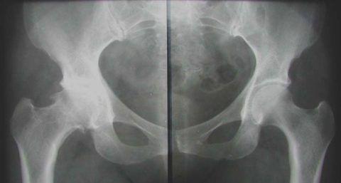 Рентген (на фото) помогает определить специалисту степень и область поражения тазобедренного сустава.
