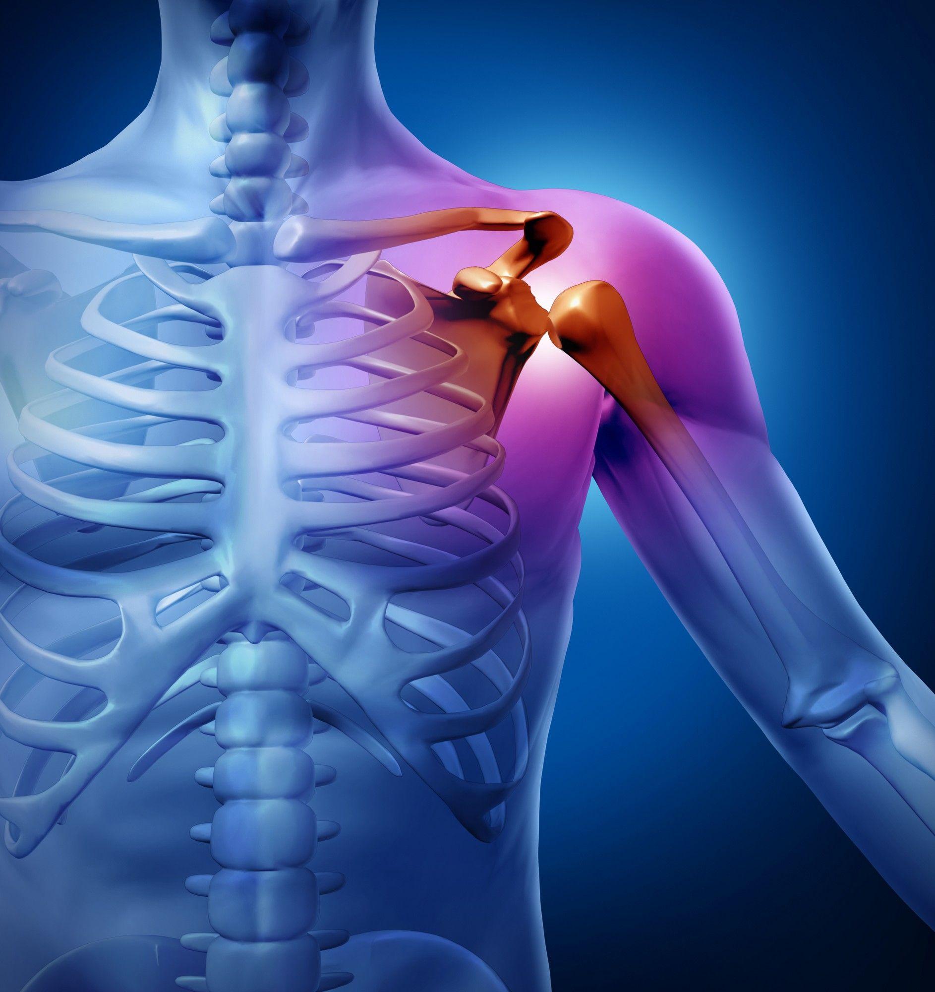 Как образуется синовит плечевого сустава, его проявления и способы лечения