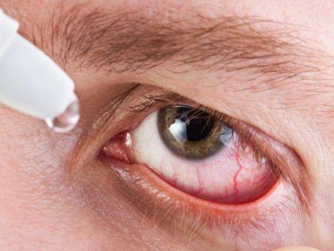 Сухость, рези в глазах часто сопровождают заболевание
