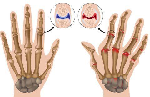 Типичное поражение при артрите
