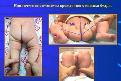 У новорожденных малышей дисплазия проявляет себя рядом клинических симптомов.