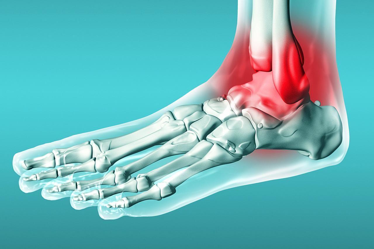 Как развивается артрит голеностопного сустава, его симптомы и лечение различными методами