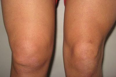 Жидкость в коленном суставе – что это значит и как быть?