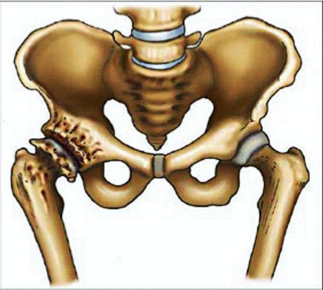 Артроз тазобедренного сустава — самый частый вид артрозов