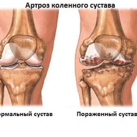 Артроз суставов приводит к истончению хрящевой прослойки
