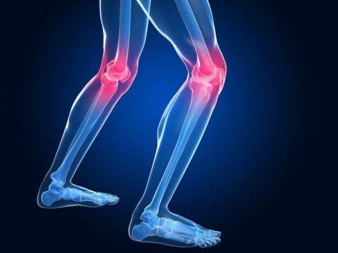 Боль в коленных суставах может возникнуть по разным причинам