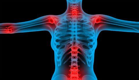 Болезнь суставов – лечение, причины и профилактика