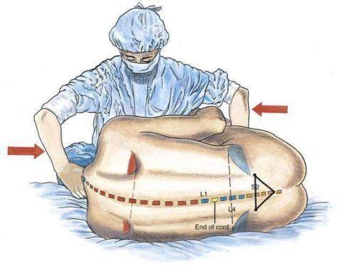 Данное положение требует дополнительной стабилизации пациента.