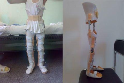 Детский тутор на сустав (или суставы).