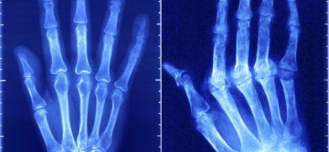 Диагноз подтверждается рентгенологически
