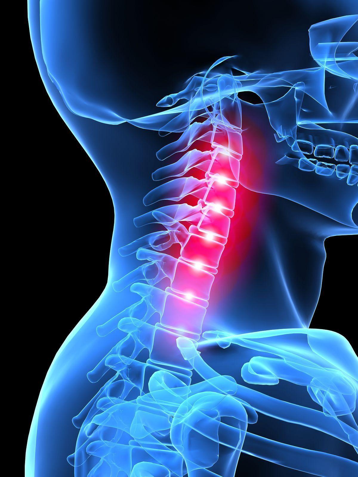 Что такое дорсопатия шейного отдела позвоночника — все об этом заболевании