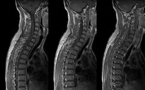 Если шейно-грудной остеохондроз, признаки, симптомы и лечение вызывают затруднение, пользуются компьютерной томографией
