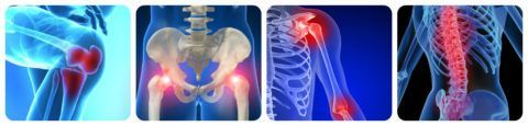 Гель «Лошадиная сила» поможет снять боль и отек при заболеваниях костно-мышечной системы.