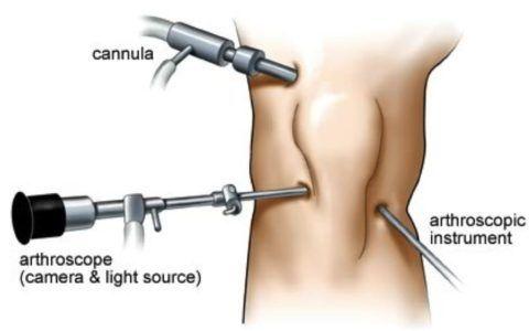 Инструменты для артроскопии колена.