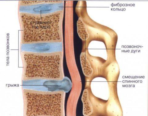 Как грыжа влияет на спинной мозг: иллюстрация