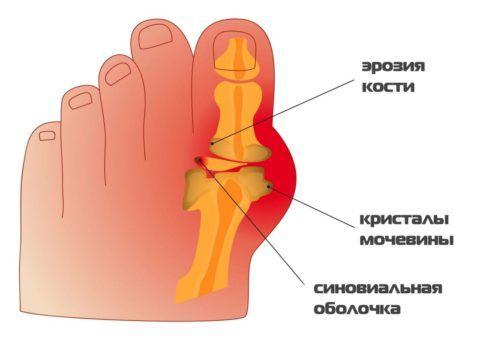 Классическая локализация подагрического артрита — большой палец ноги