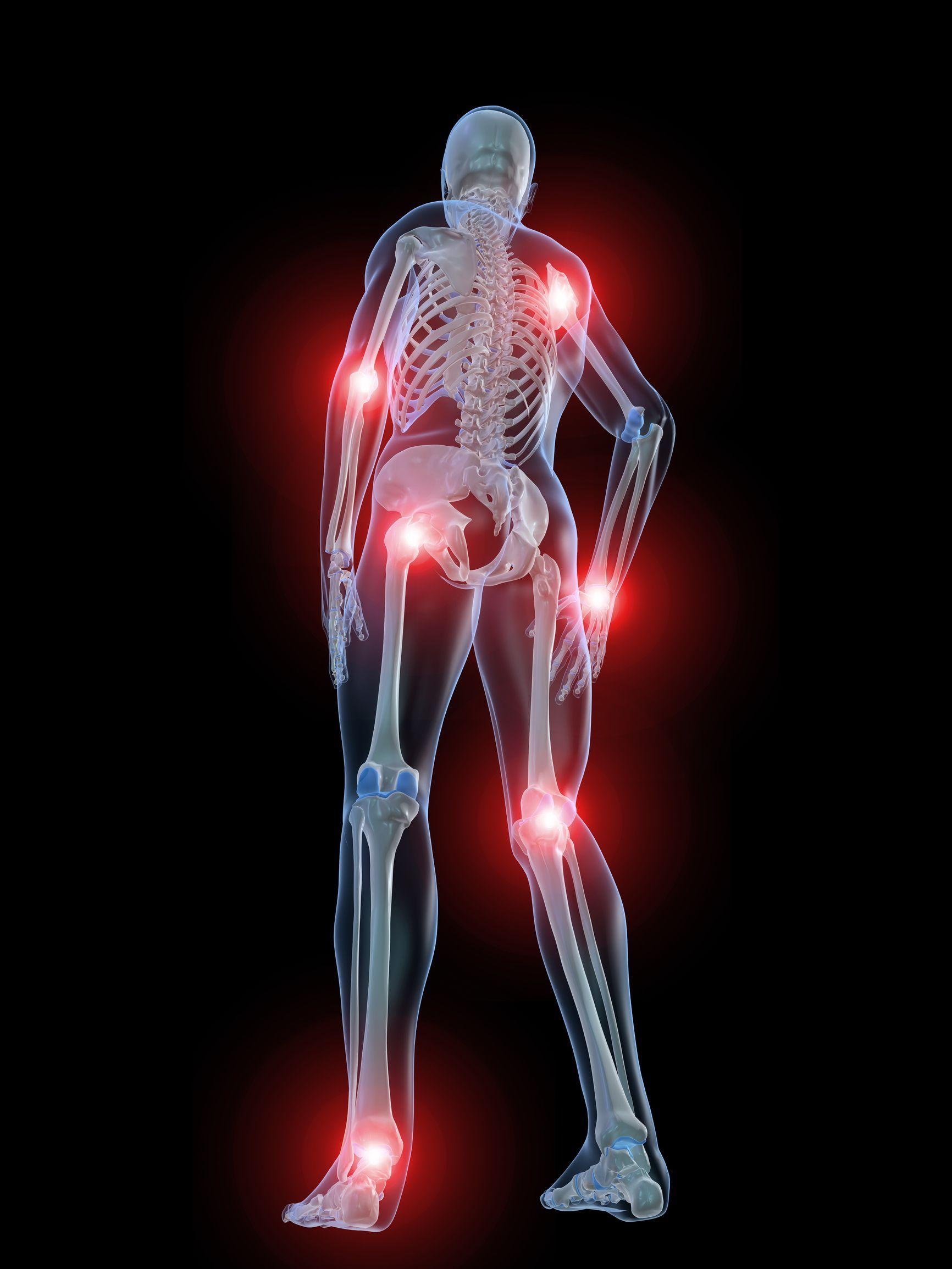 Почему возникает воспаление суставов и как с этим бороться