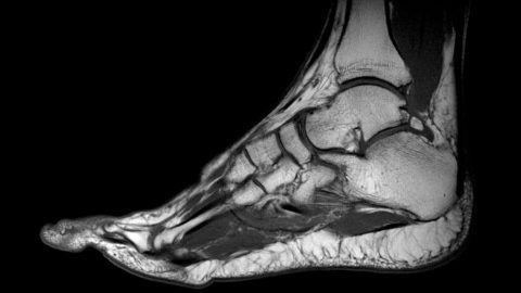 МРТ — один из наиболее информативных методов исследования при воспалении голеностопа