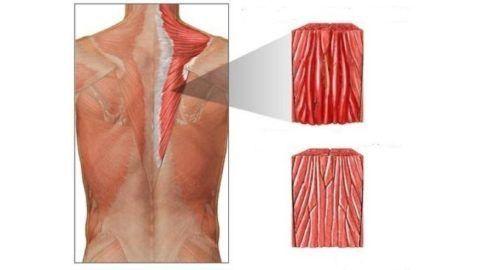 Воспаление чаще возникает в мышцах конечностей (икроножной, дельтовидной), спины и живота