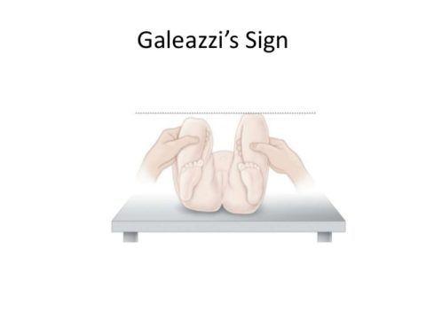 На фото представлен признак Галеацци при дисплазии.