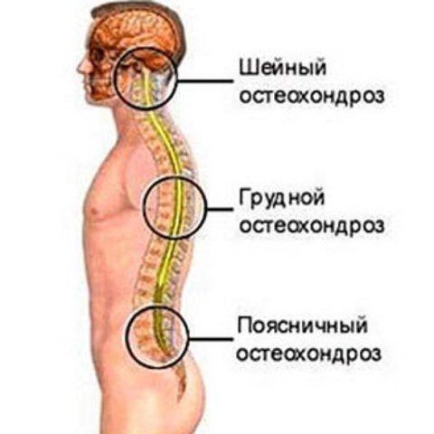 Остеохондроз – это патология любого из отделов позвоночника