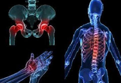 Остеопороз – проблема костей и околосуставной области