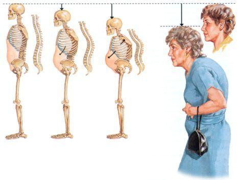 Остеопороз диффузный приводит к формированию горба
